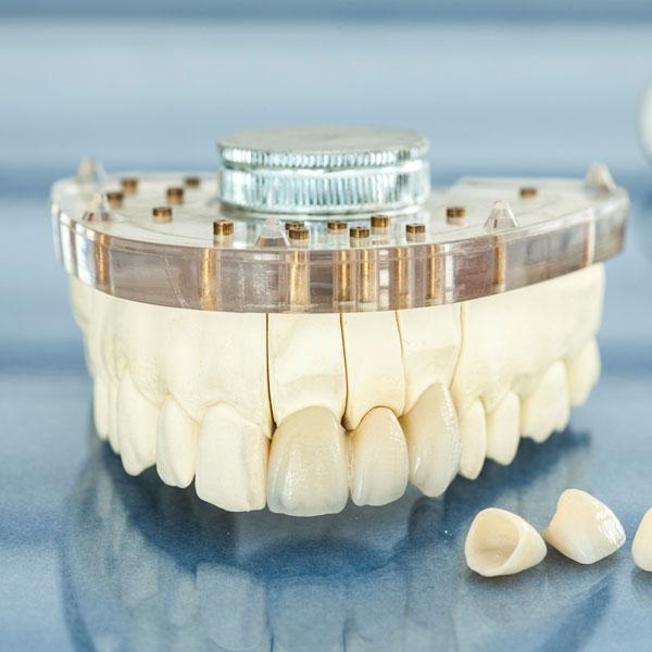 Dental Crown & Bridge