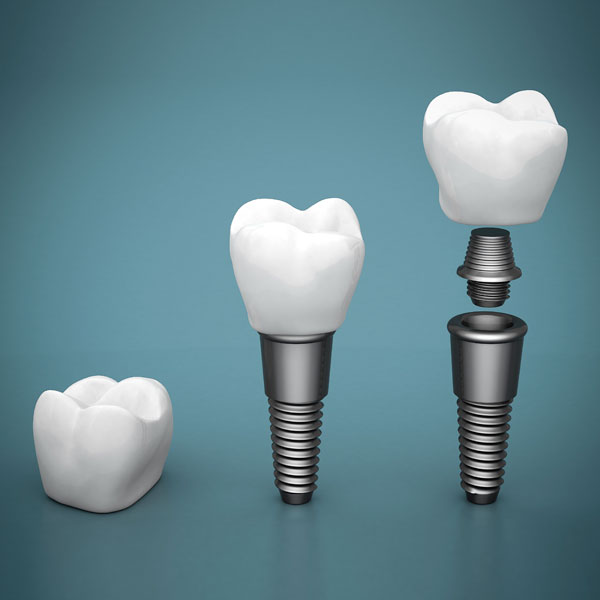 Tooth Implant Surgery
